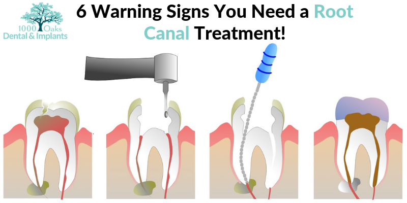 6 Warning Signs You Need a Root Canal Treatment!-1000oaksdentists
