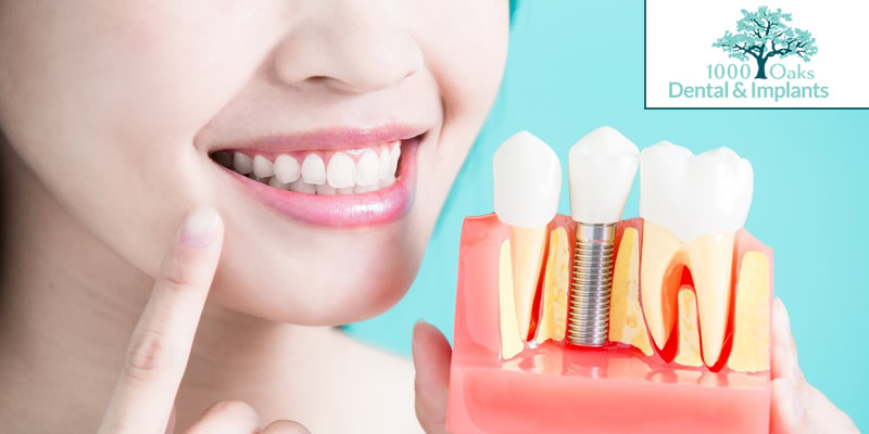 Gum Disease (Gingivitis & Periodontitis) Know The Symptoms, Causes & Treatment