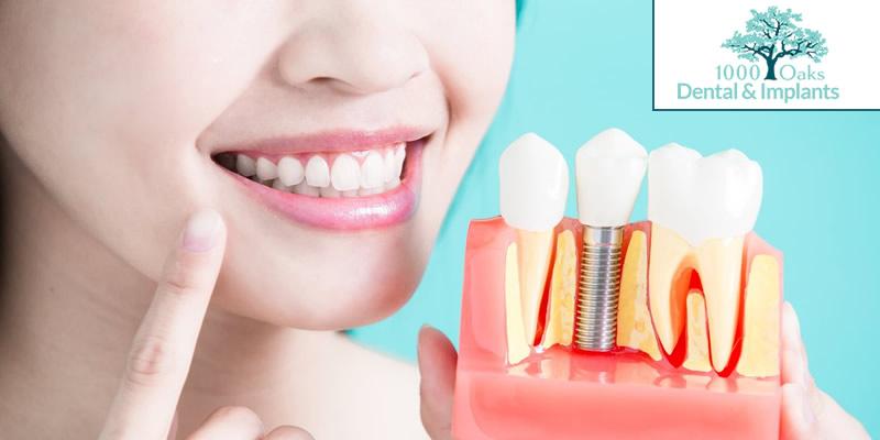 Gum Disease (Gingivitis & Periodontitis) Know The Symptoms, Causes & Treatment