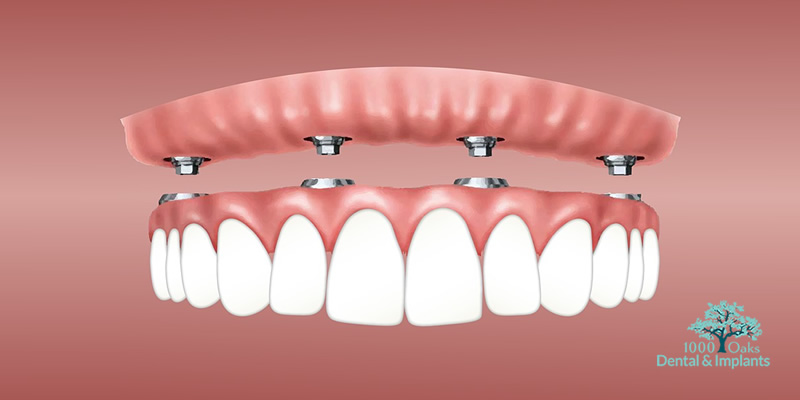 Know The Benefits of All on 4 Dental Implants!