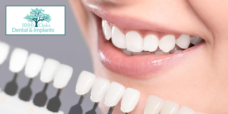 5 Surprising Ways Dental Veneers Can Enhance Your Smile!