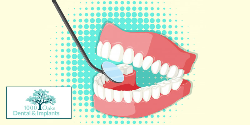 5 Ways to Stop Bleeding Gums