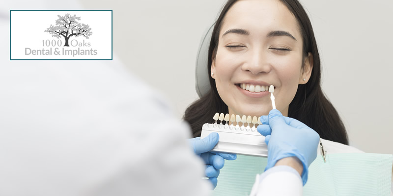 7 Things To Know Before Getting Dental Veneers