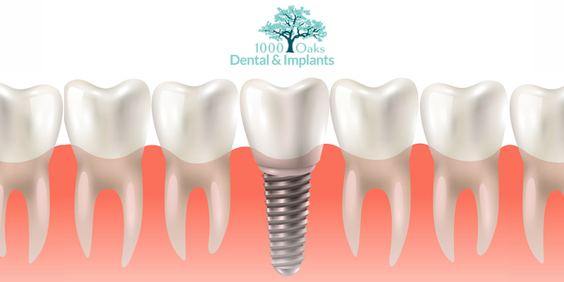 Benefits & Types of Dental Implants
