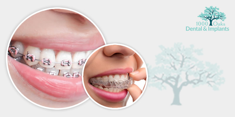 Invisalign vs Metal Braces Select The Perfect One For You!