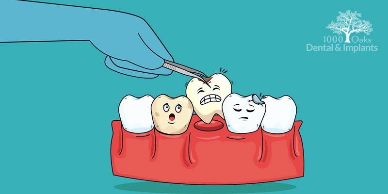 How Dental Implants Improve Your Oral Health Find Out!