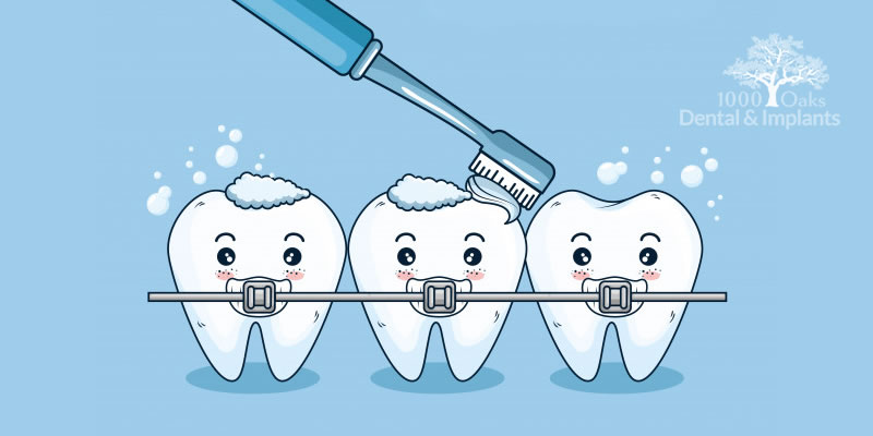 How Can I Clean Around Braces