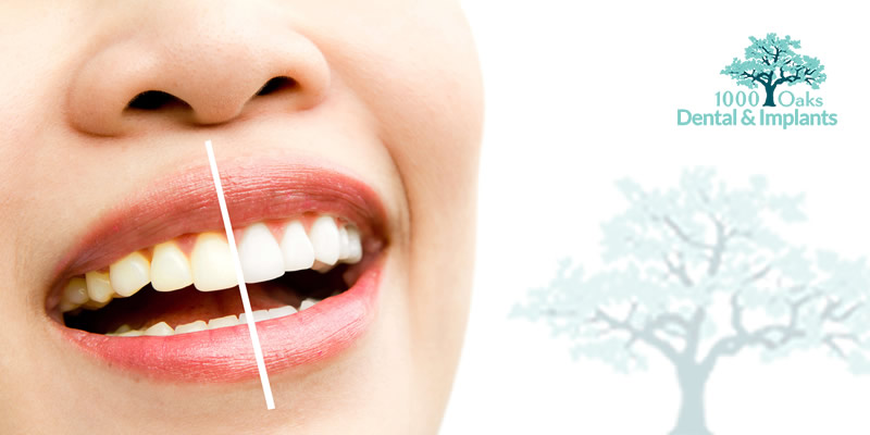 Teeth Whitening: Do Whitening Strips Work?