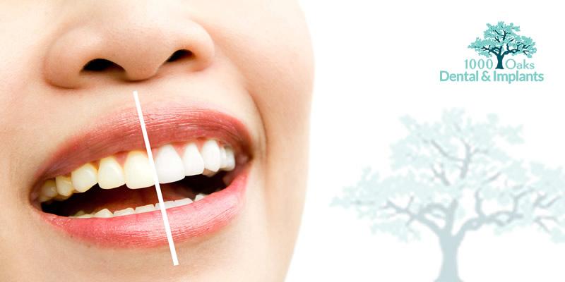 Teeth Whitening: Do Whitening Strips Work?