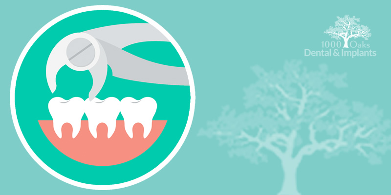 Wisdom Teeth Extraction: Does Every Tooth Extraction Need Stitches?