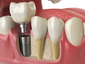 3 Reasons Why Dental Implants Are Called The Gold Standard