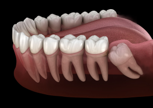 Wisdom tooth image