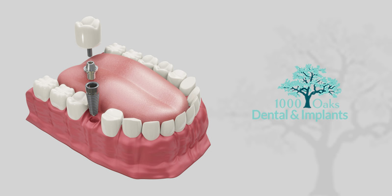 5 Major Health Benefits Of Dental Implants
