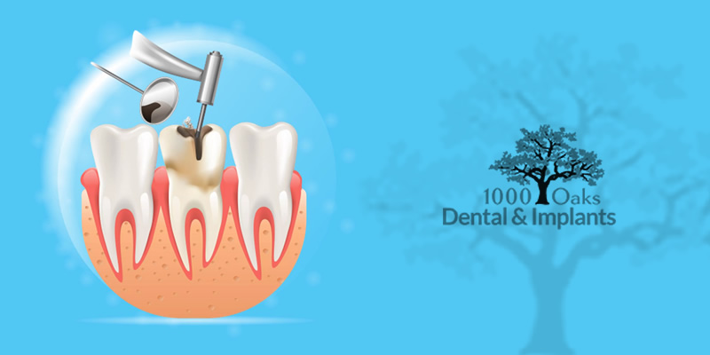 Few Warning Signs You Need a Root Canal Treatment