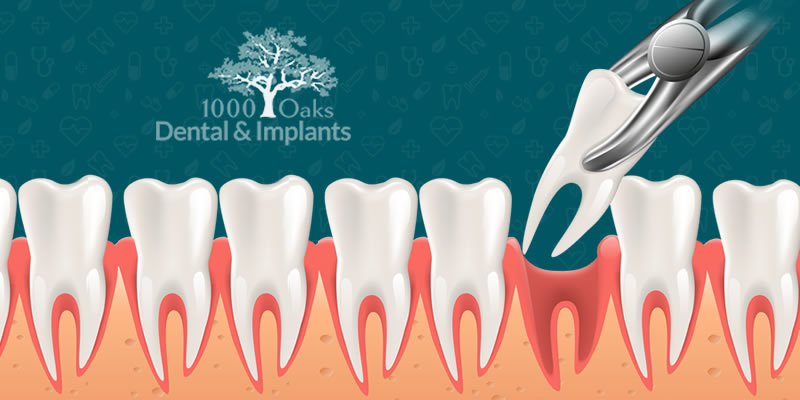 Wisdom Teeth Removal What You Need To Know About It!