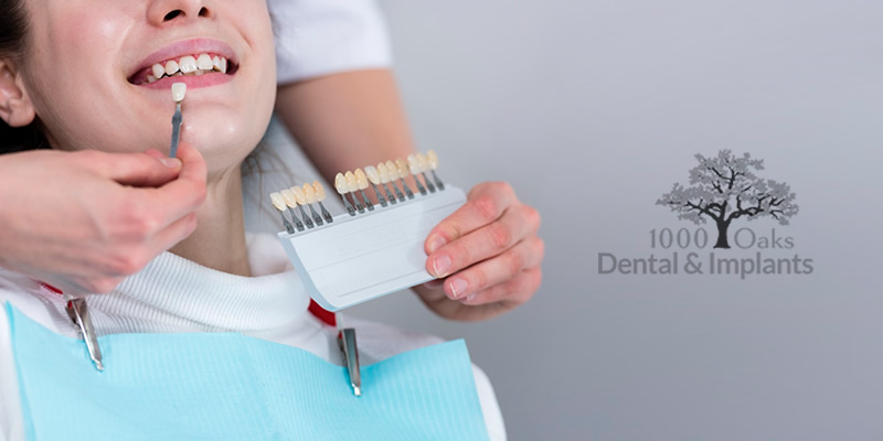Improve Your Smile With Dental Veneers