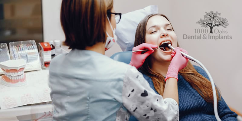 Routine Dental Checkup What You Should Know