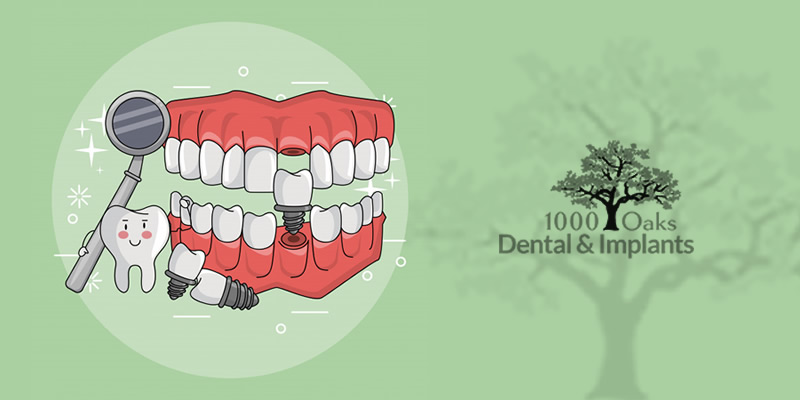 Tips To Increase Longevity Of Dental Implants