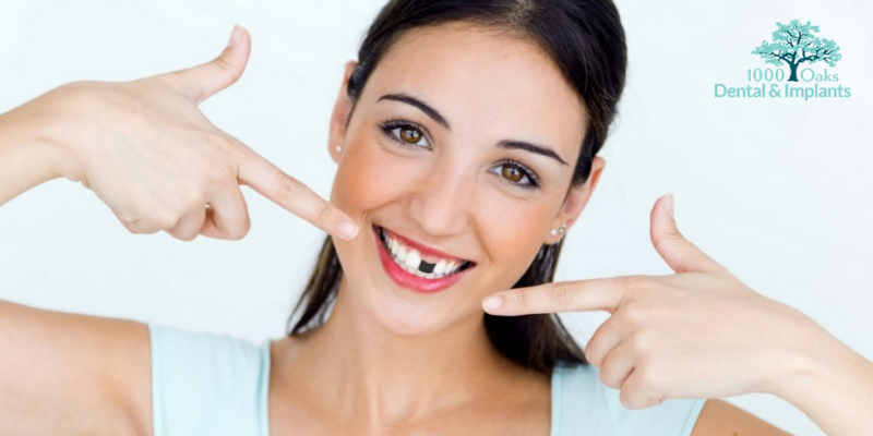 Replacing a Missing Tooth isn't Just About Improving Your Smile