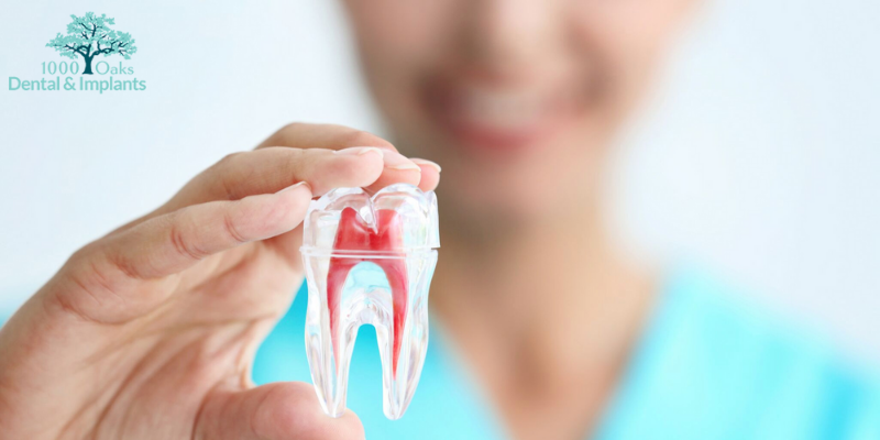 Dental Advice on How to Recover From Root Canal Treatments