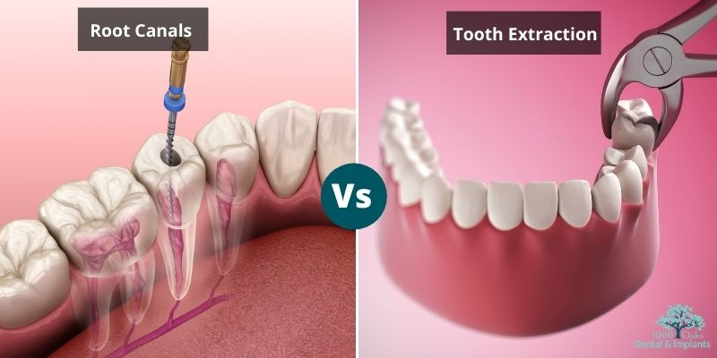 Root Canals vs Tooth Extraction Which One Is Suitable