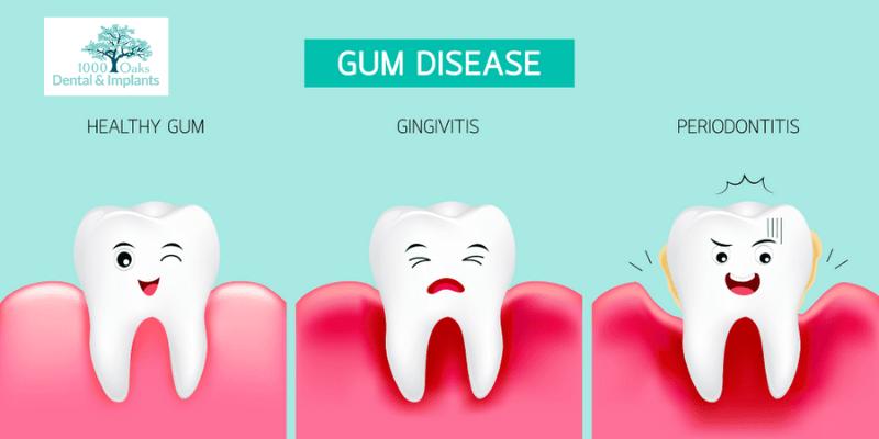 Gingivitis (Gum Infection)